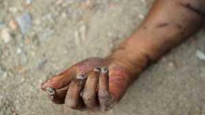 Horror: Man Stabs His Own Flatmate